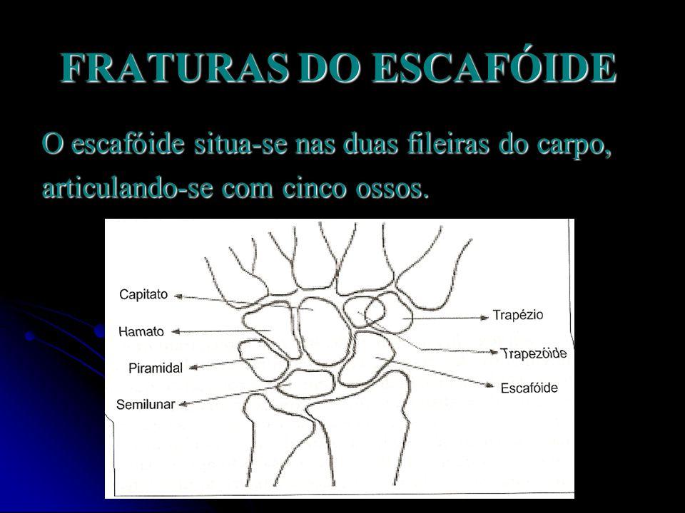 FRATURAS DO ESCAFÓIDE Mais de 60% das lesões do carpo correspondem à fraturas do escafóide.