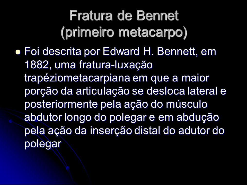 Fratura de Bennet (primeiro metacarpo) Foi descrita por Edward H.
