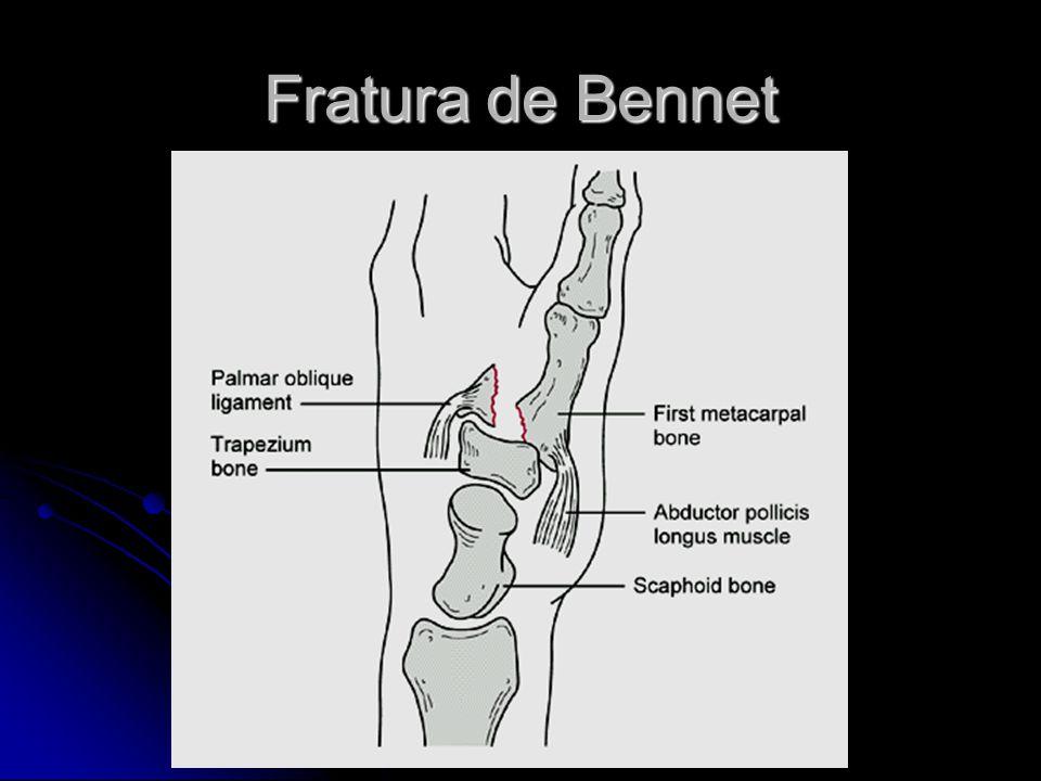 Fratura de Bennet