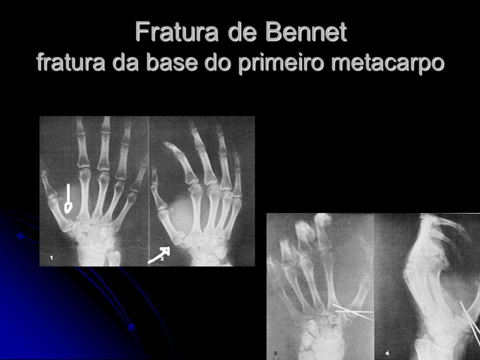 Fratura de Bennet fratura da base do primeiro metacarpo