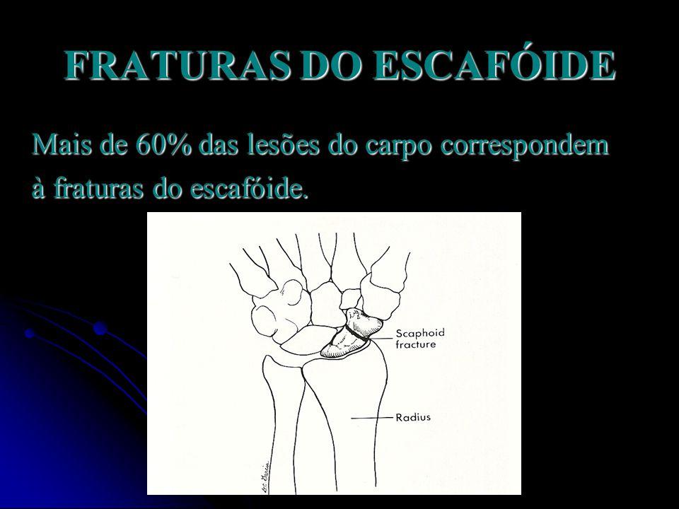 Fratura dedo (falange)