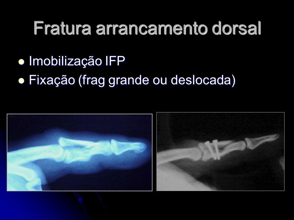 Fratura arrancamento dorsal Imobilização IFP Imobilização IFP Fixação (frag grande ou deslocada) Fixação (frag grande ou deslocada)