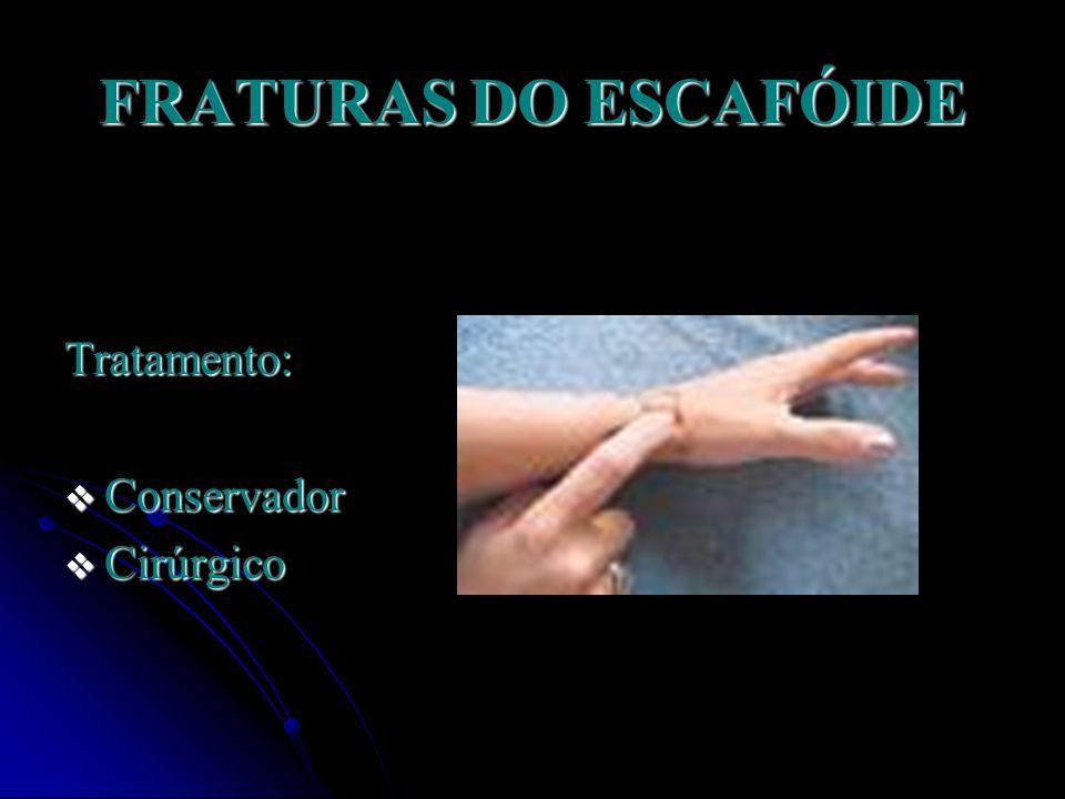 FRATURAS DO ESCAFÓIDE Intervenção cirúrgica Indicada quando houver indício de que não haverá consolidação somente com a imobilização.