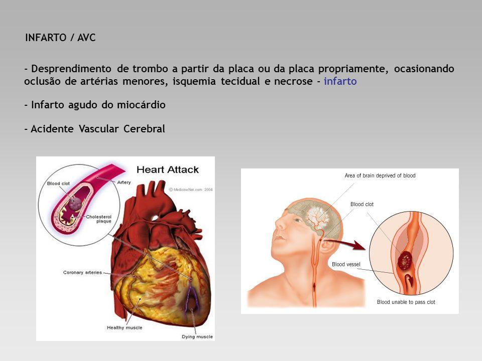 INFARTO / AVC - Desprendimento de trombo a partir da placa ou da placa propriamente, ocasionando oclusão de artérias menores, isquemia tecidual e necr