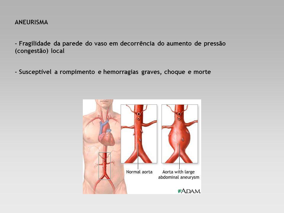 ANEURISMA - Fragilidade da parede do vaso em decorrência do aumento de pressão (congestão) local - Susceptível a rompimento e hemorragias graves, choq