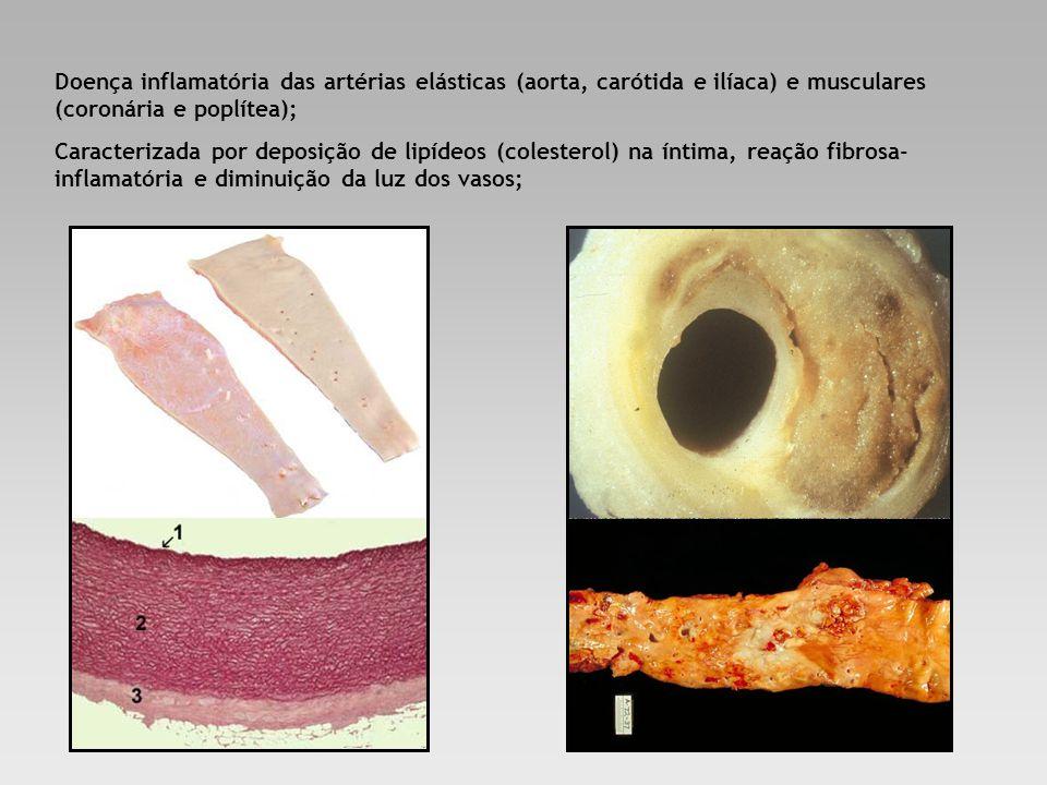 Doença inflamatória das artérias elásticas (aorta, carótida e ilíaca) e musculares (coronária e poplítea); Caracterizada por deposição de lipídeos (co