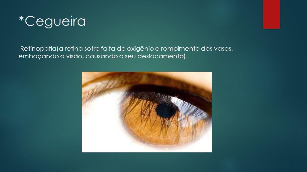 *Cegueira Retinopatia(a retina sofre falta de oxigênio e rompimento dos vasos, embaçando a visão, causando o seu deslocamento).