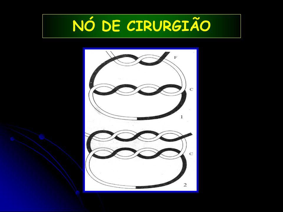 NÓ DE CIRURGIÃO