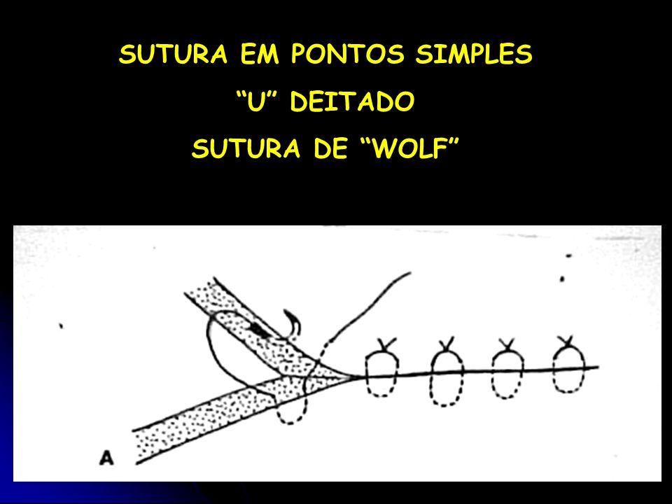 SUTURA EM PONTOS SIMPLES U DEITADO SUTURA DE WOLF