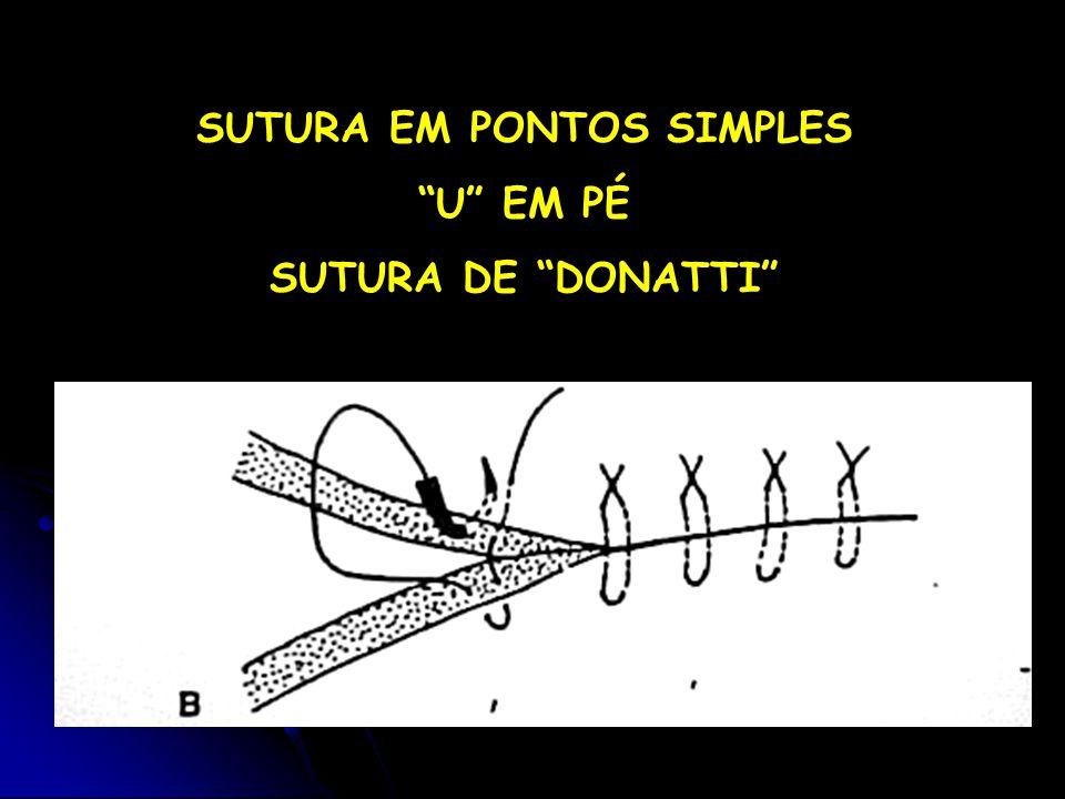 SUTURA EM PONTOS SIMPLES U EM PÉ SUTURA DE DONATTI