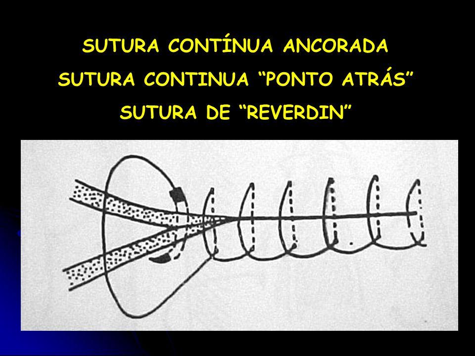 SUTURA CONTÍNUA ANCORADA SUTURA CONTINUA PONTO ATRÁS SUTURA DE REVERDIN
