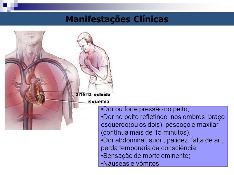 Manifestações Clínicas Dor ou forte pressão no peito; Dor no peito refletindo nos ombros, braço esquerdo(ou os dois), pescoço e maxilar (contínua mais