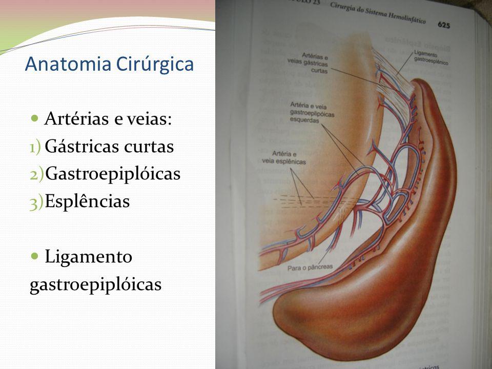 Anatomia Cirúrgica Artérias e veias: 1) Gástricas curtas 2) Gastroepiplóicas 3) Esplências Ligamento gastroepiplóicas
