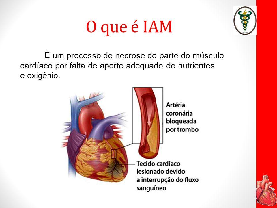 Por que ocorre .É causado pela redução do fluxo sanguíneo coronariano.