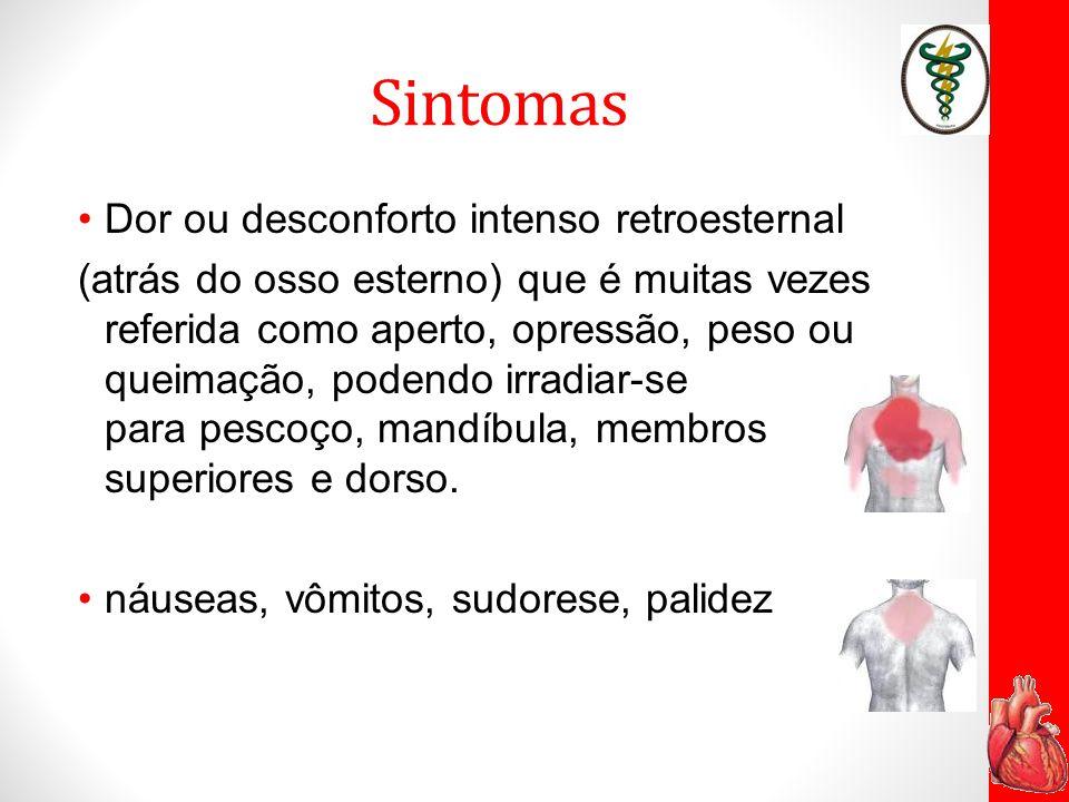 Sintomas Dor ou desconforto intenso retroesternal (atrás do osso esterno) que é muitas vezes referida como aperto, opressão, peso ou queimação, podend