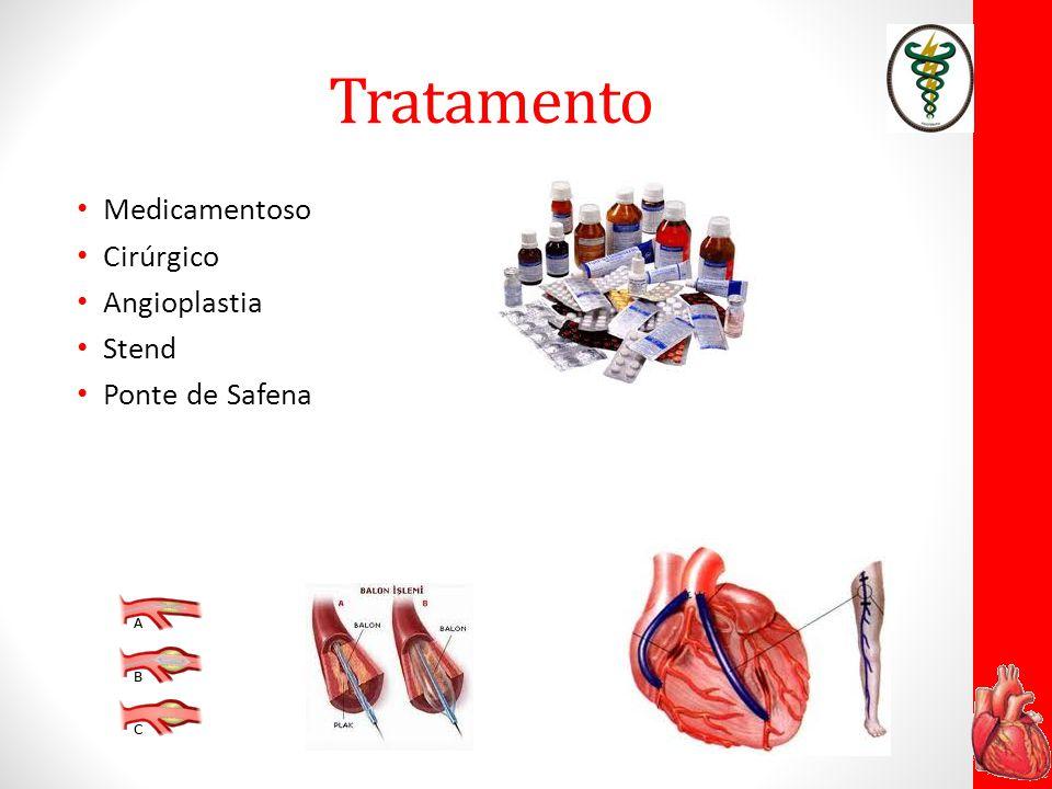 Importante As doenças cardiovasculares, dentre elas o infarto agudo do miocárdio, são as principais causas de morte no Brasil.