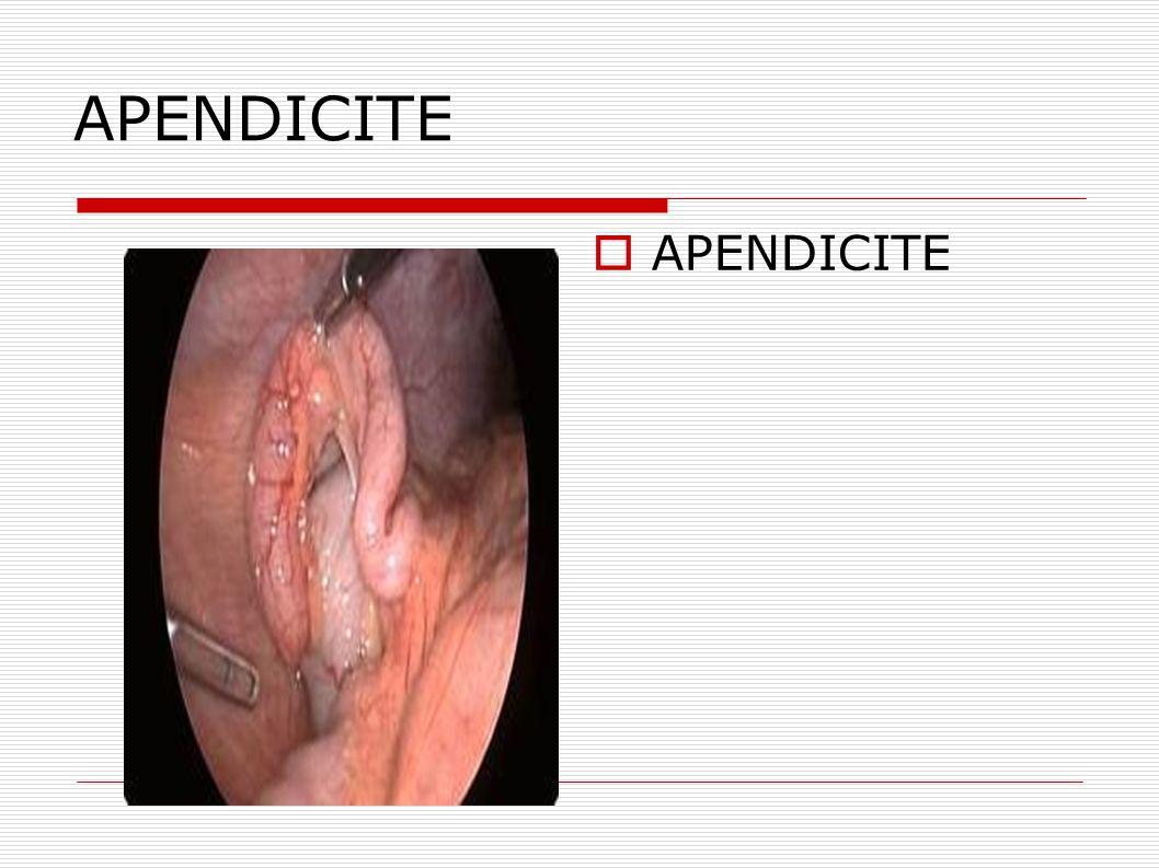 Úlcera  A úlcera péptica é uma lesão localizada no estômago ou duodeno com destruição da mucosa da parede destes órgãos, atingindo os vasos sanguíneos subjacentes.
