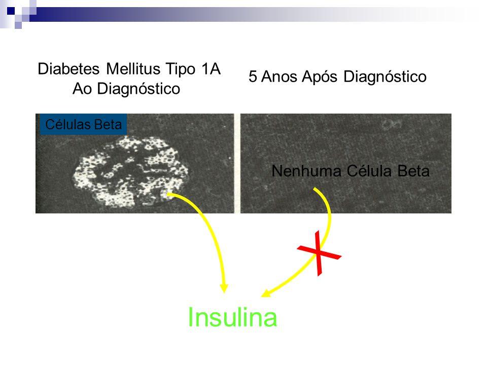 Células Beta Diabetes Mellitus Tipo 1A Ao Diagnóstico 5 Anos Após Diagnóstico Insulina Nenhuma Célula Beta X