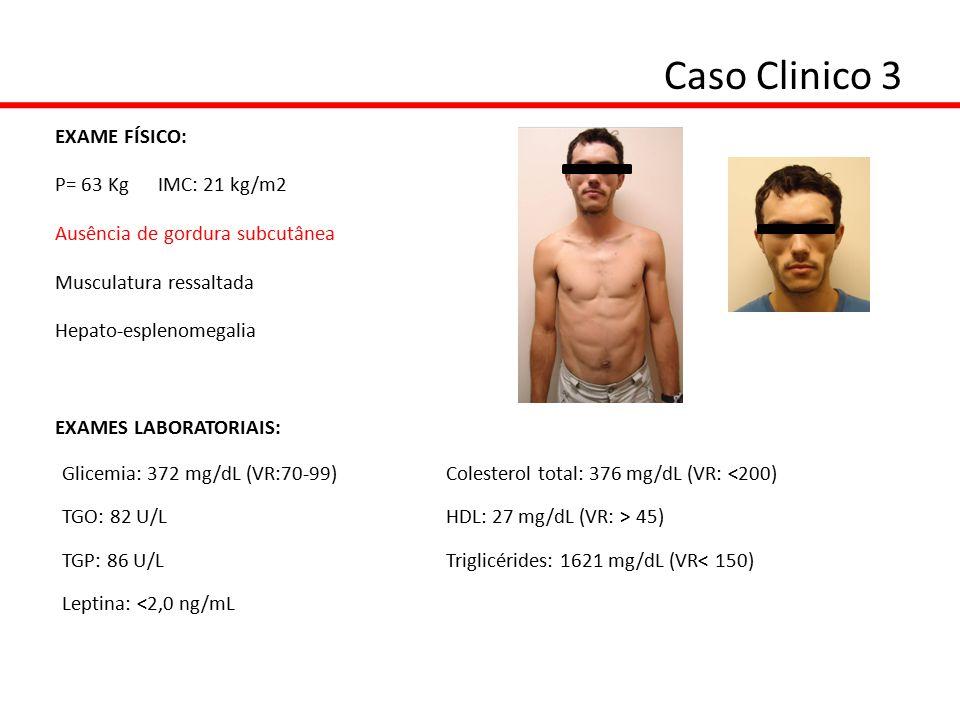 Caso Clinico 3 EXAME FÍSICO: P= 63 Kg IMC: 21 kg/m2 Ausência de gordura subcutânea Musculatura ressaltada Hepato-esplenomegalia EXAMES LABORATORIAIS: