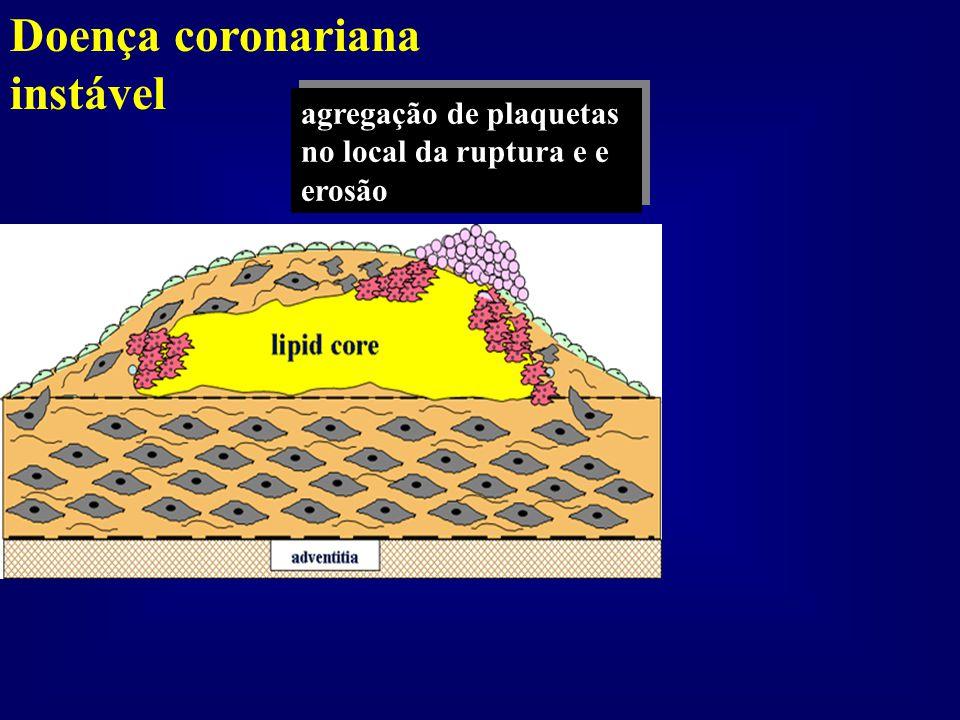 Doença coronariana instável agregação de plaquetas no local da ruptura e e erosão