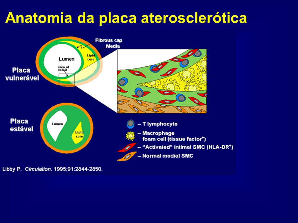 Anatomia da placa aterosclerótica