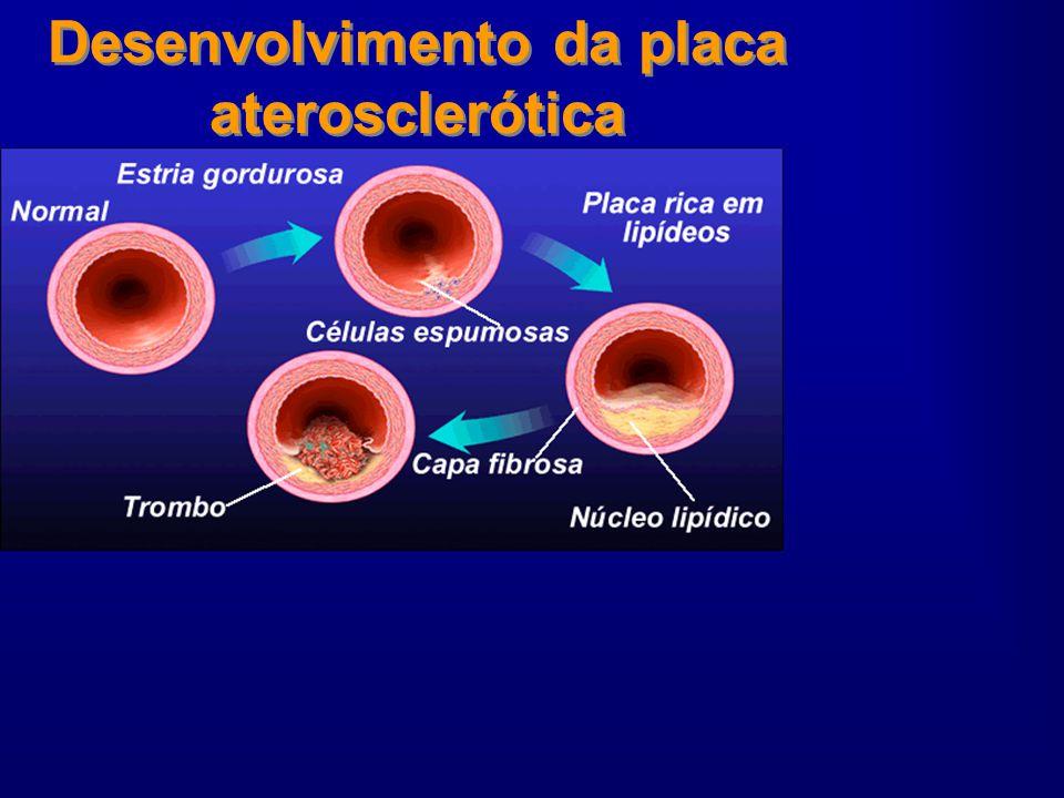 Composição do Ateroma Células da Parede Vascular –Endotélio –Células Musculares Lisas Células inflamatórias –Macrófagos –Linfócitos T –Mastócitos Não somente lipídios mas também: