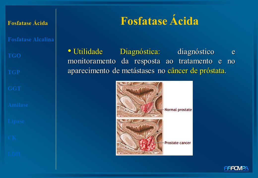 Fosfatase Ácida Fosfatase Alcalina TGO TGP GGT Amilase Lipase CK LDH Fosfatase Ácida Utilidade Diagnóstica: diagnóstico e monitoramento da resposta ao