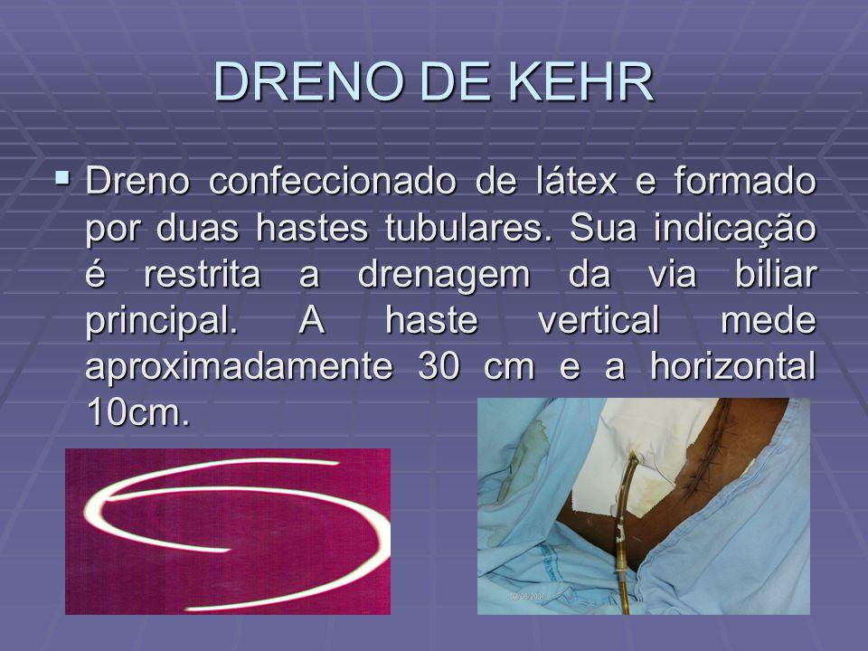 DRENO DE KEHR  Dreno confeccionado de látex e formado por duas hastes tubulares. Sua indicação é restrita a drenagem da via biliar principal. A haste