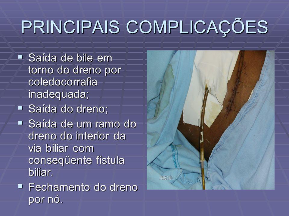 PRINCIPAIS COMPLICAÇÕES  Saída de bile em torno do dreno por coledocorrafia inadequada;  Saída do dreno;  Saída de um ramo do dreno do interior da