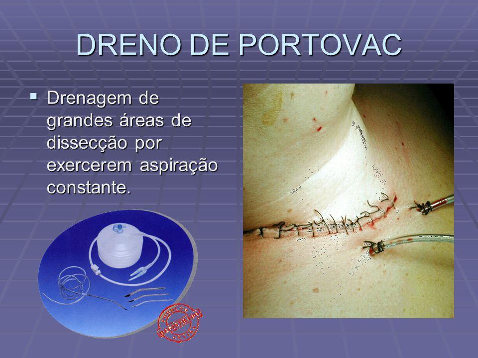 DRENO DE PORTOVAC  Drenagem de grandes áreas de dissecção por exercerem aspiração constante.