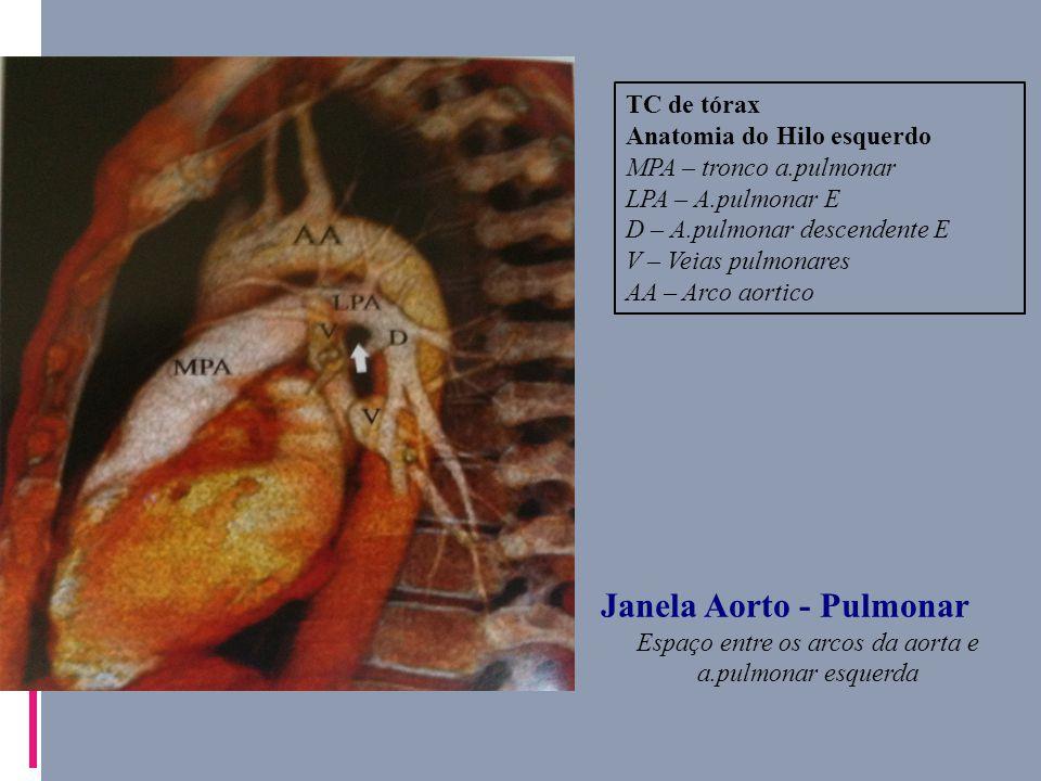Perfecto Tc De Tórax Anatomía Imágenes - Imágenes de Anatomía Humana ...