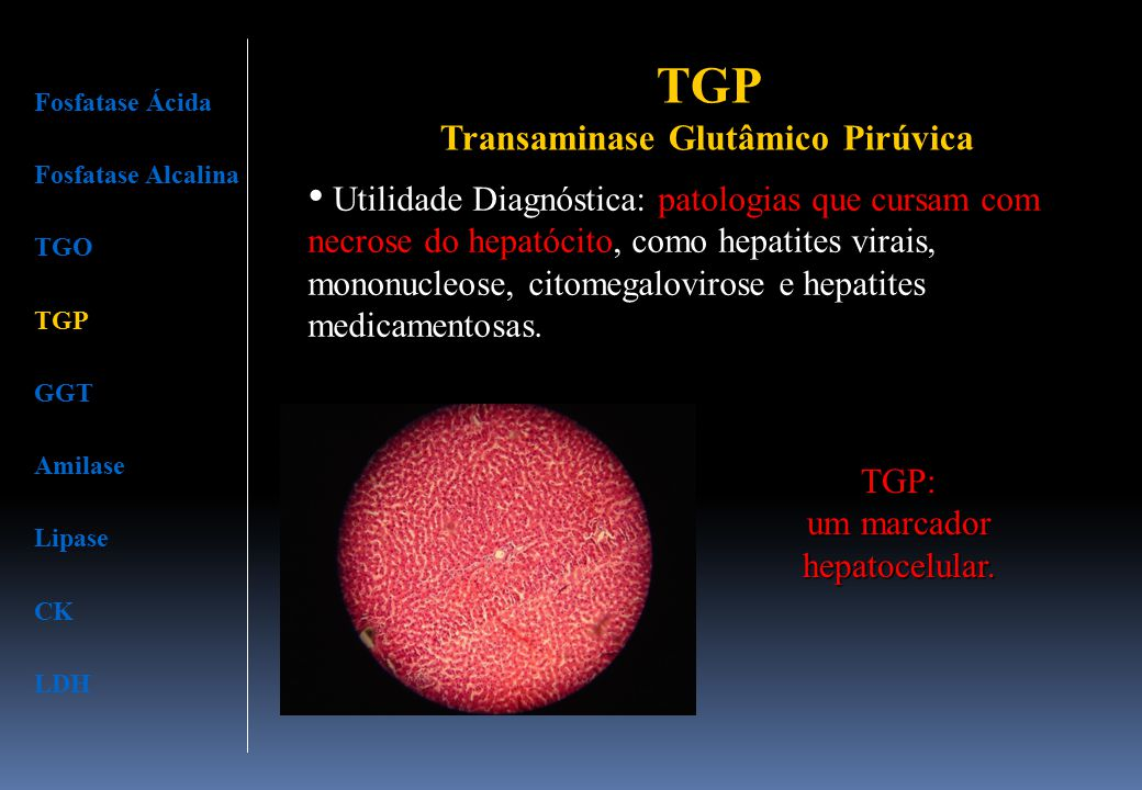 Fosfatase Ácida Fosfatase Alcalina TGO TGP GGT Amilase Lipase CK LDH Utilidade Diagnóstica: patologias que cursam com necrose do hepatócito, como hepa