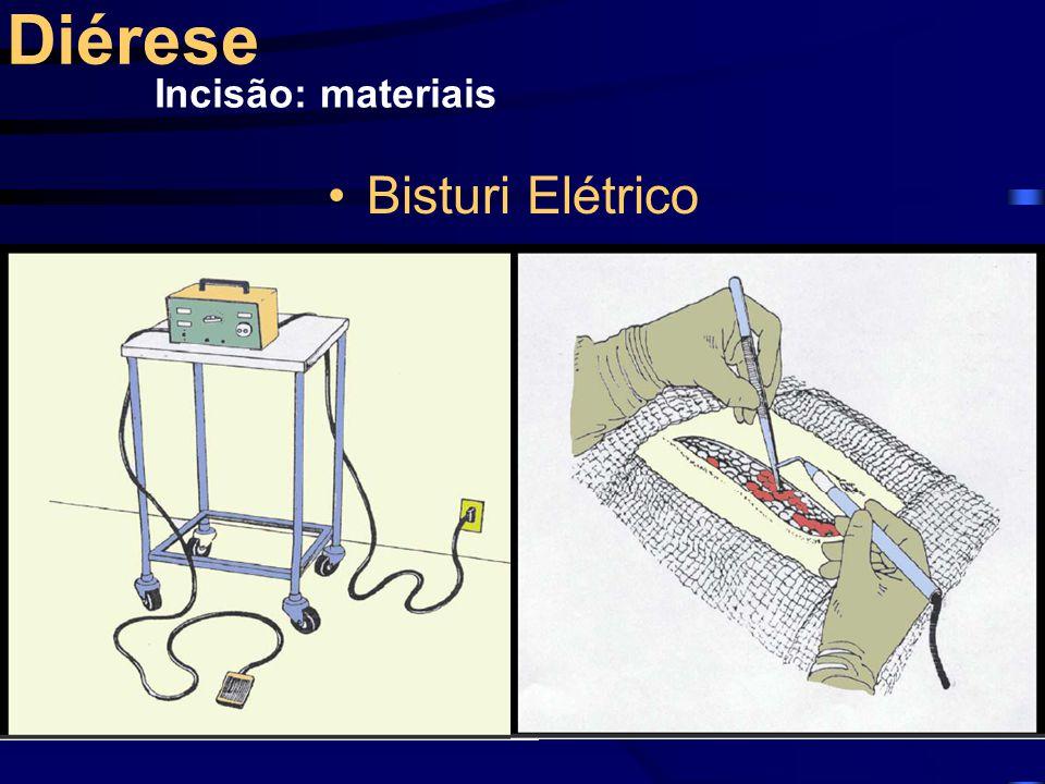 Diérese Incisão: materiais Bisturi Elétrico
