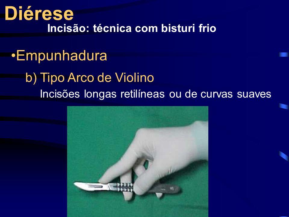 Diérese Incisão: técnica com bisturi frio Empunhadura b) Tipo Arco de Violino Incisões longas retilíneas ou de curvas suaves