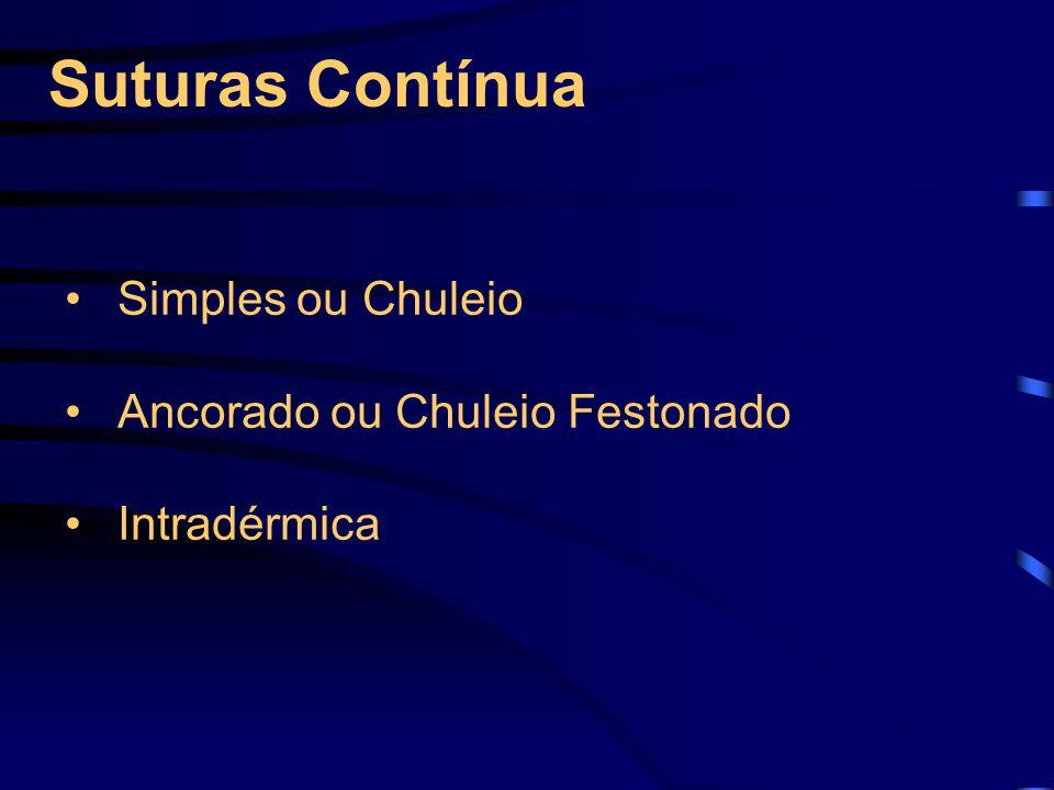 Suturas Contínua Simples ou Chuleio Ancorado ou Chuleio Festonado Intradérmica