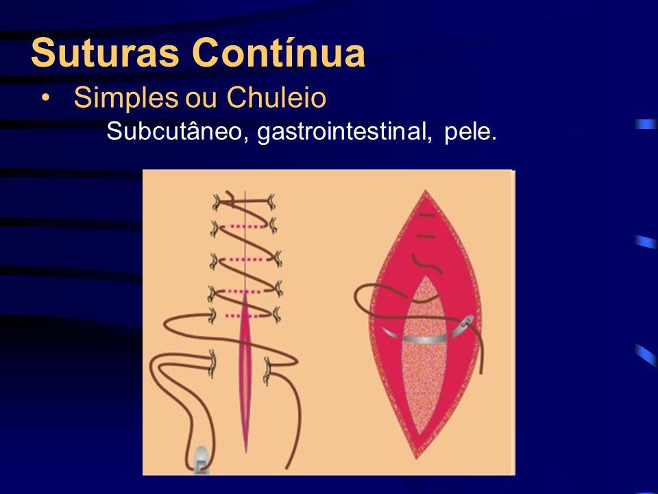 Suturas Contínua Simples ou Chuleio Subcutâneo, gastrointestinal, pele.
