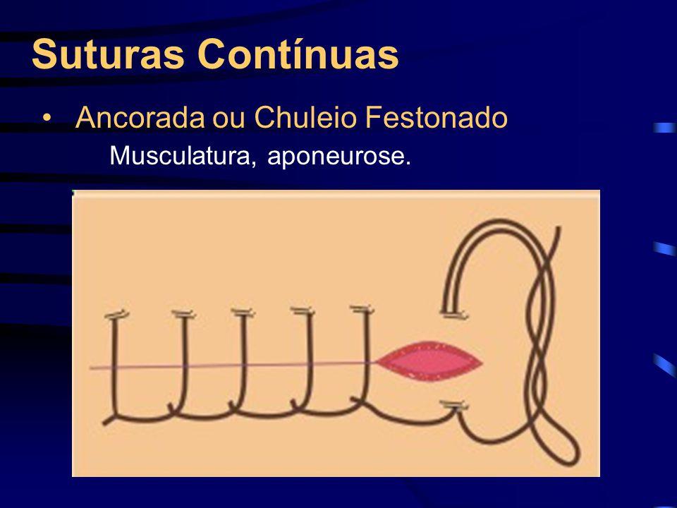 Suturas Contínuas Ancorada ou Chuleio Festonado Musculatura, aponeurose.