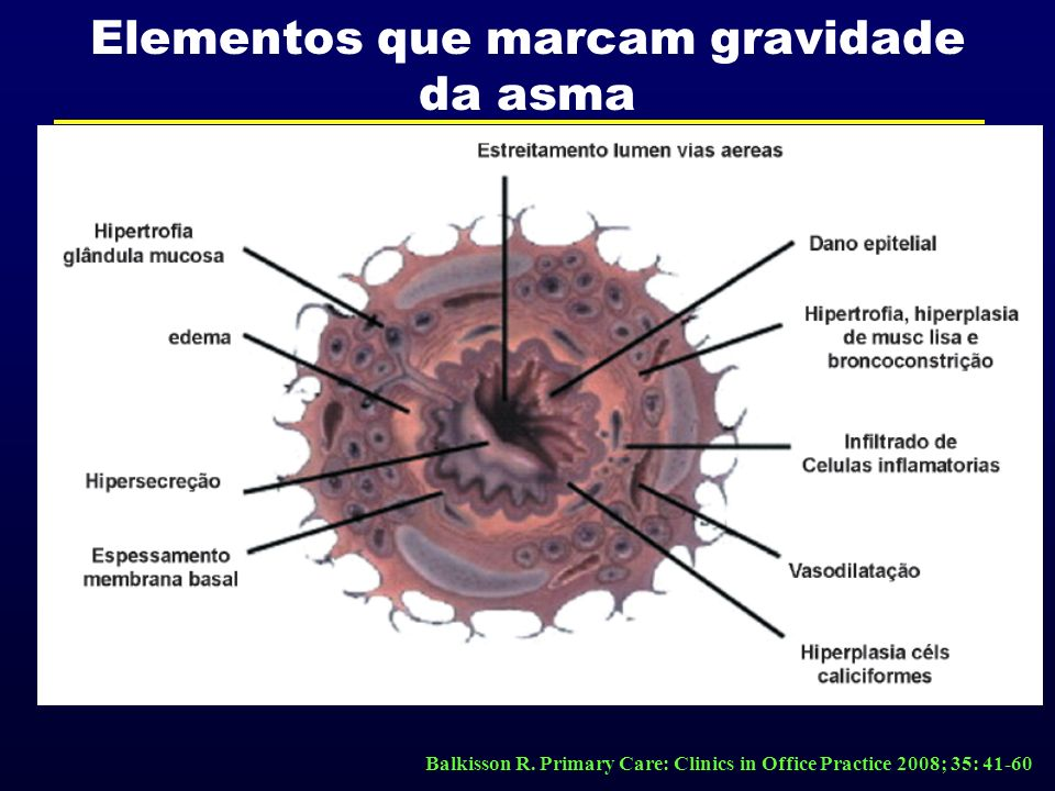 Elementos que marcam gravidade da asma Balkisson R. Primary Care: Clinics in Office Practice 2008; 35: 41-60