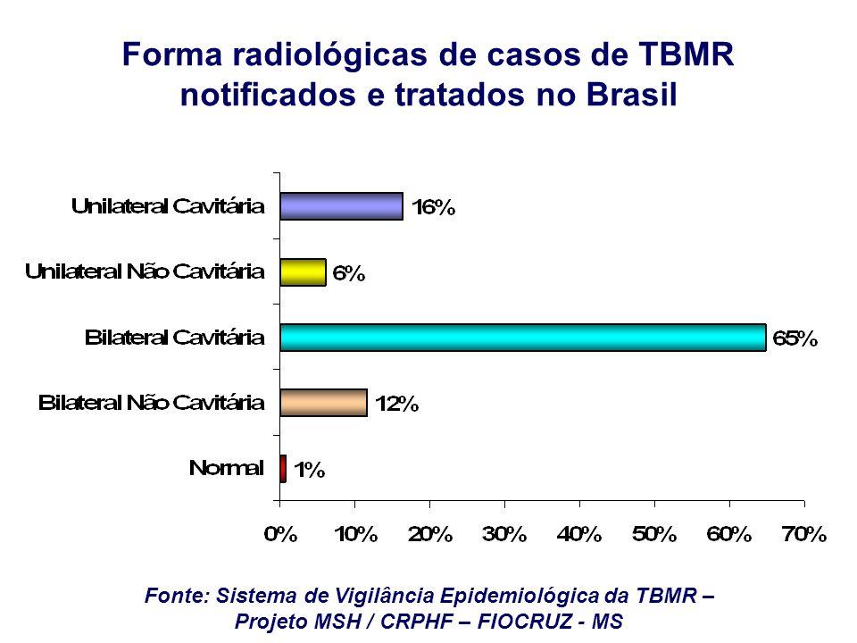 Fonte: Sistema de Vigilância Epidemiológica da TBMR – Projeto MSH / CRPHF – FIOCRUZ - MS Forma radiológicas de casos de TBMR notificados e tratados no