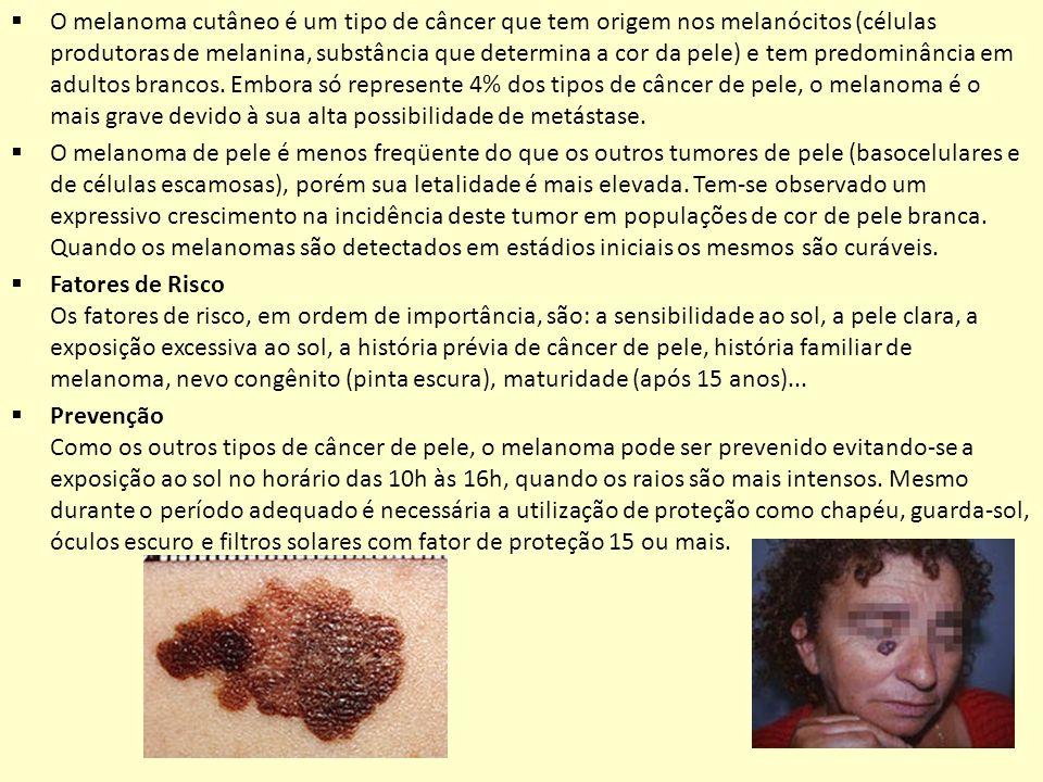 O melanoma cutâneo é um tipo de câncer que tem origem nos melanócitos (células produtoras de melanina, substância que determina a cor da pele) e tem p