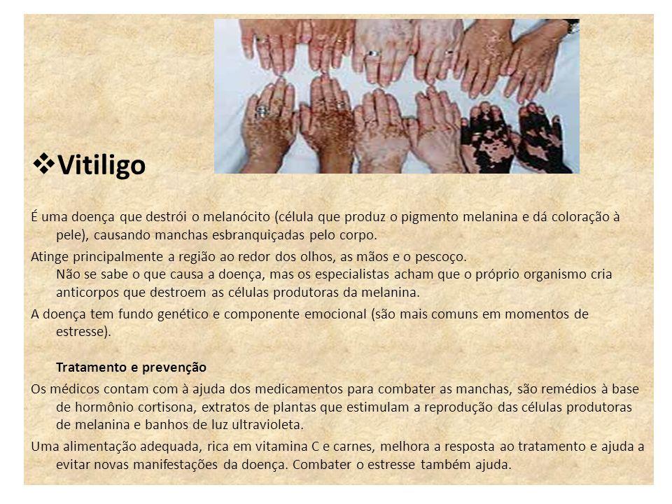 Vitiligo É uma doença que destrói o melanócito (célula que produz o pigmento melanina e dá coloração à pele), causando manchas esbranquiçadas pelo cor