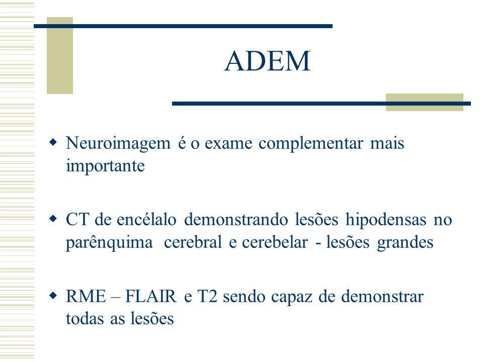 ADEM Neuroimagem é o exame complementar mais importante CT de encélalo demonstrando lesões hipodensas no parênquima cerebral e cerebelar - lesões gran