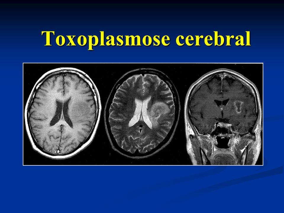 Toxoplasmose cerebral Toxoplasmose cerebral