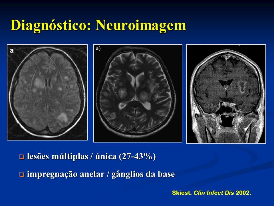 Diagnóstico: Neuroimagem lesões múltiplas / única (27-43%) lesões múltiplas / única (27-43%) impregnação anelar / gânglios da base impregnação anelar