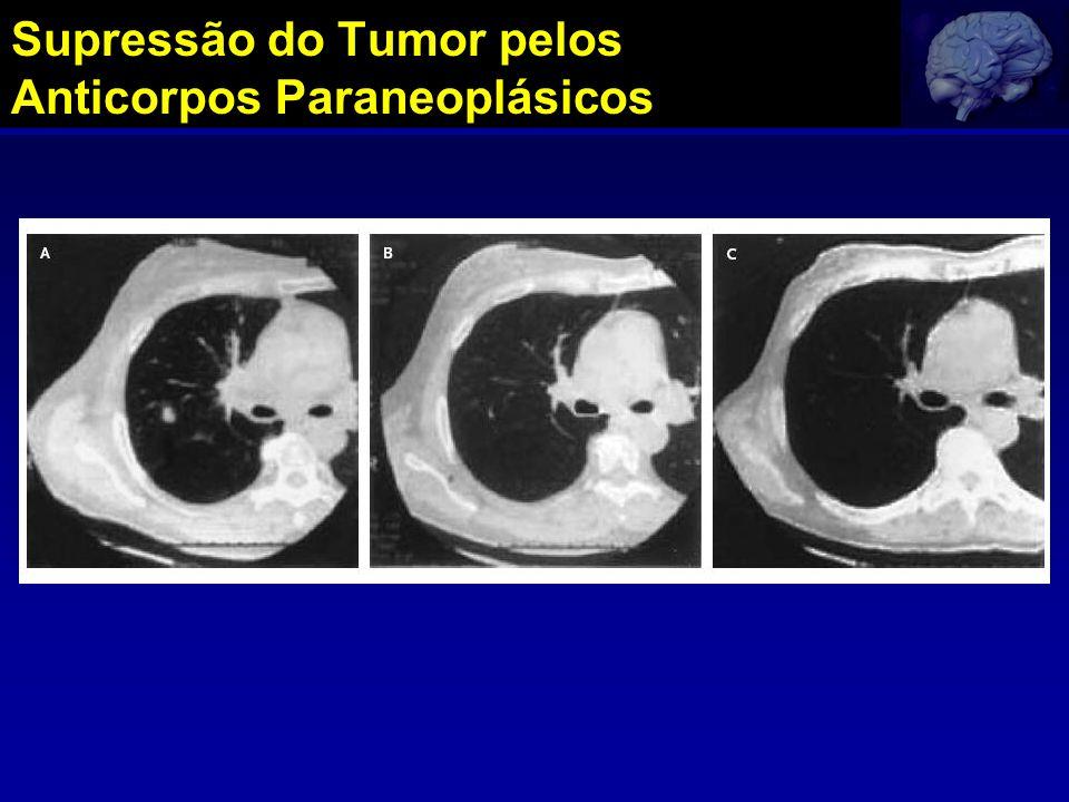 Supressão do Tumor pelos Anticorpos Paraneoplásicos