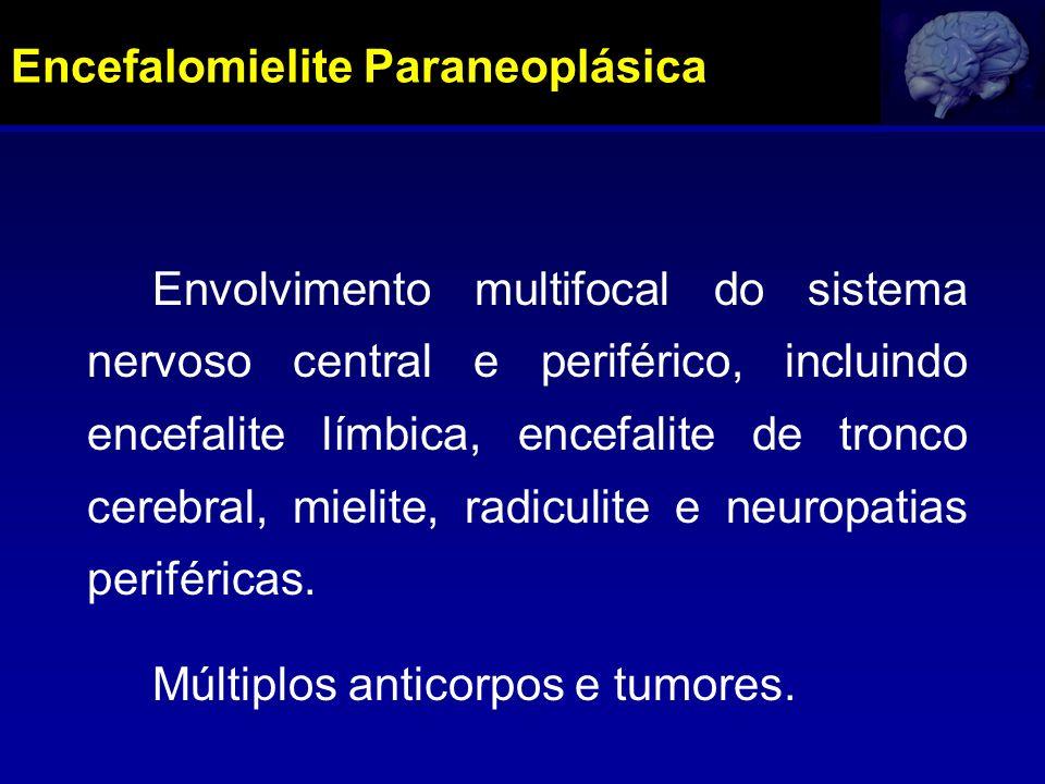 Encefalomielite Paraneoplásica Envolvimento multifocal do sistema nervoso central e periférico, incluindo encefalite límbica, encefalite de tronco cer