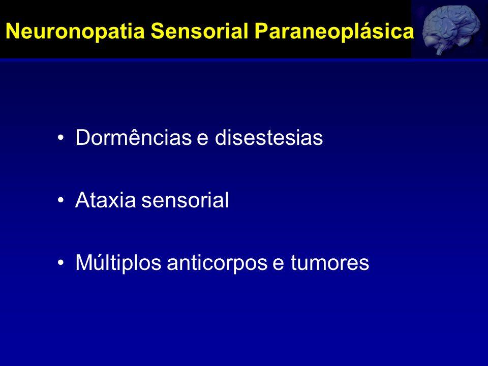 Neuronopatia Sensorial Paraneoplásica Dormências e disestesias Ataxia sensorial Múltiplos anticorpos e tumores