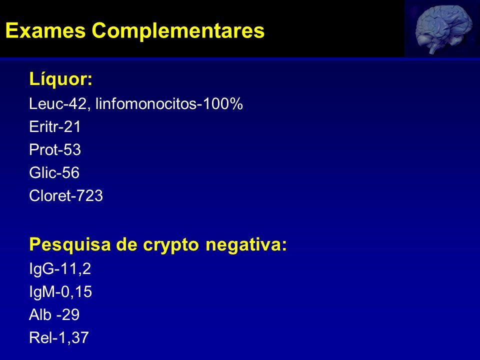 Líquor: Leuc-42, linfomonocitos-100% Eritr-21 Prot-53 Glic-56 Cloret-723 Pesquisa de crypto negativa: IgG-11,2 IgM-0,15 Alb -29 Rel-1,37 Exames Comple