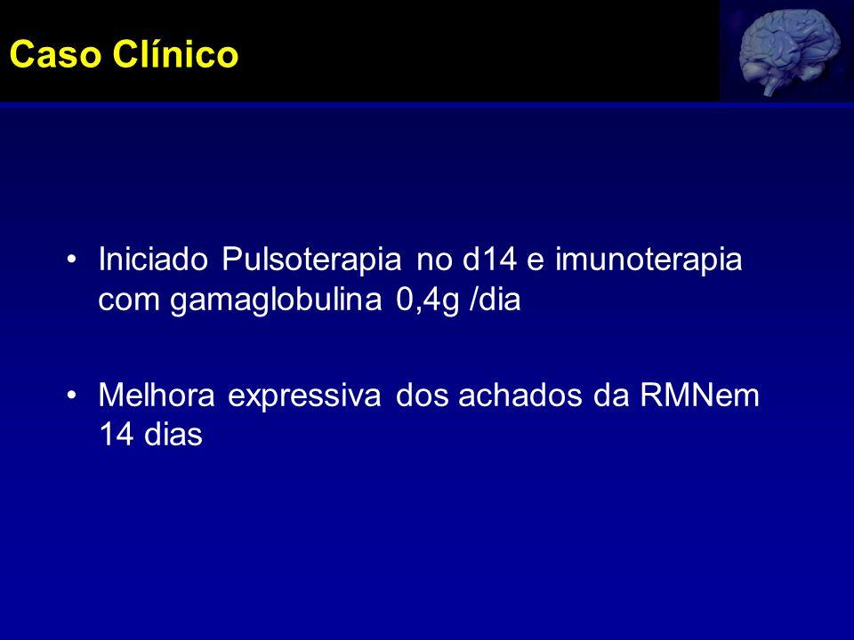 Iniciado Pulsoterapia no d14 e imunoterapia com gamaglobulina 0,4g /dia Melhora expressiva dos achados da RMNem 14 dias Caso Clínico