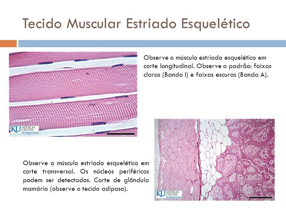 Tecido Muscular Estriado Esquelético Observe o músculo estriado esquelético em corte longitudinal. Observe o padrão: faixas claras (Banda I) e faixas